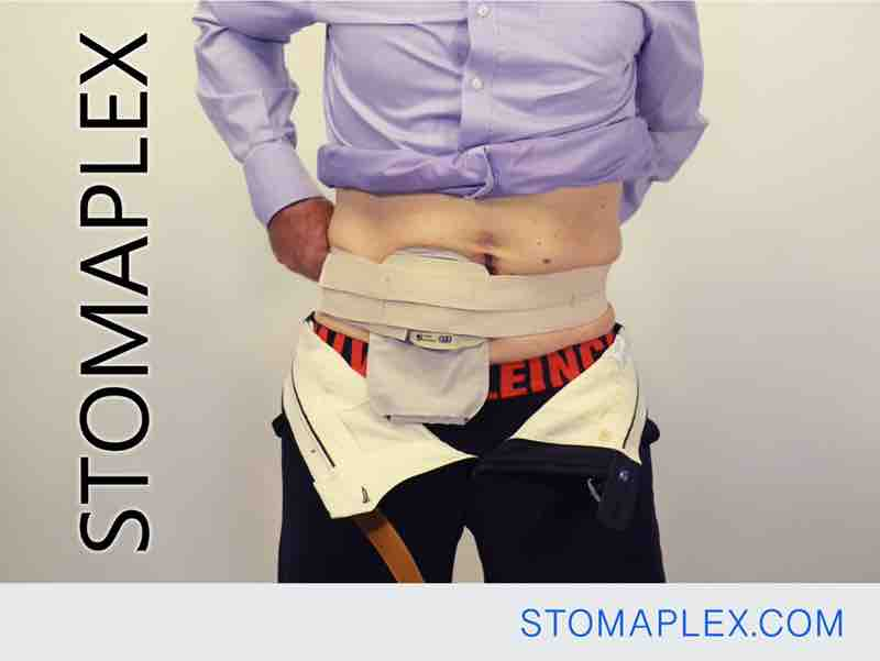 mens ostomy clothing, stomaplex stoma guard is held in place with an ostomy belt, stomaplex ostomy protection
