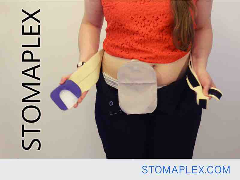 stomaplex stoma guard is positioned over the ostomy pouch and the ostomy bag inside pants and over panties,  ostomy protection, bag support belt