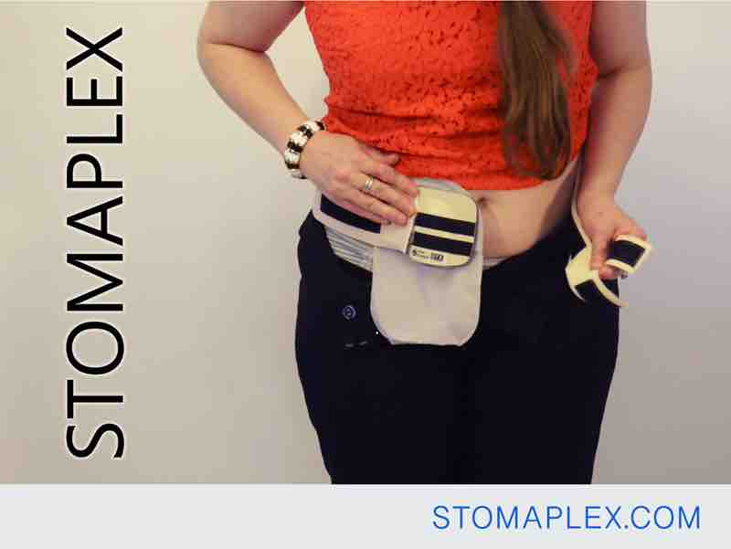 stomaplex stoma guard is place over the panties of a women with an ileostomy, coloplast ostomy bag is guarded for ostomy protection