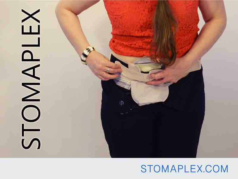 stomaplex stoma guard is secured on a womens hips over her panties with an adjustable ostomy belt by stomaplex ostomy protection