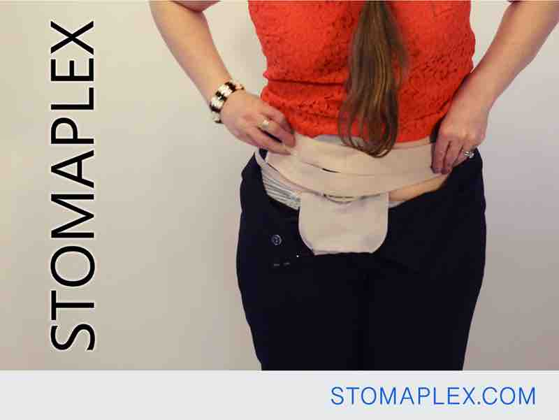 stomaplex stoma guard is now over her coloplast ostomy bag with her panties protecting her skin from the ostomy pouch for ostomy protection