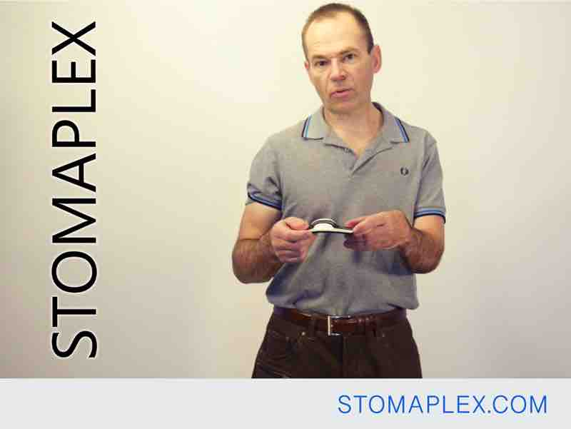 this stomaplex stoma guard has a contoured shape to help stop a stoma dome from forming