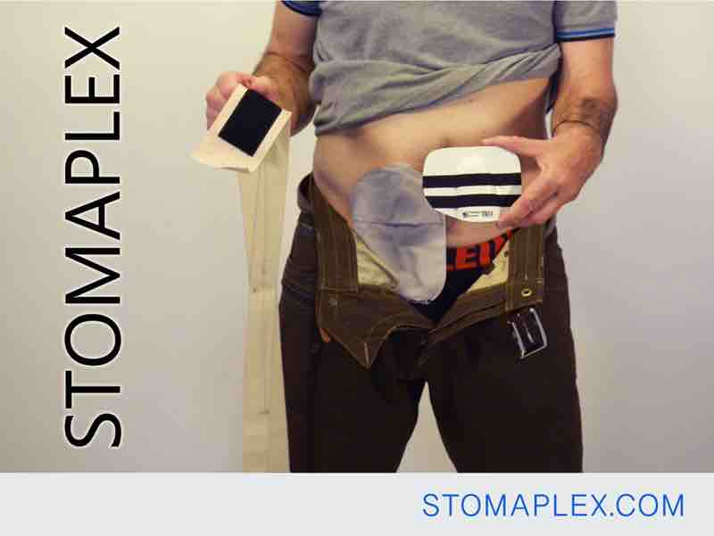 stomaplex stoma guard is easily attached to an stomaplex ostomy belt to be placed over bag for ileostomy