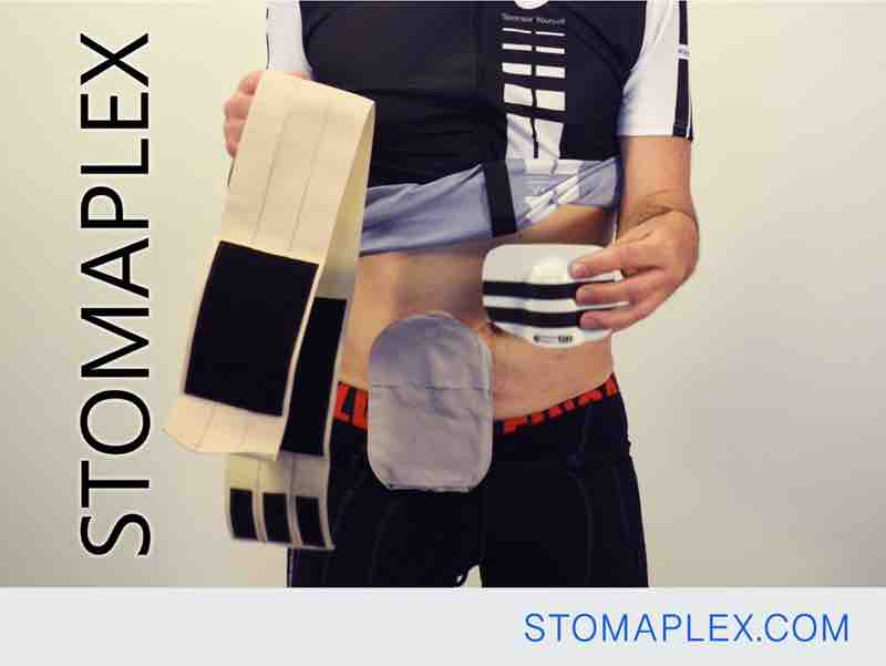 parastomal hernia support belt and stomaplex stoma guard for ostomy protection on a man with an ileostomy