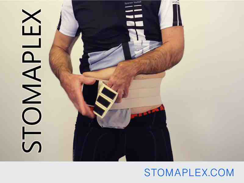 stoma guard is secured with wide ostomy belt by stomaplex