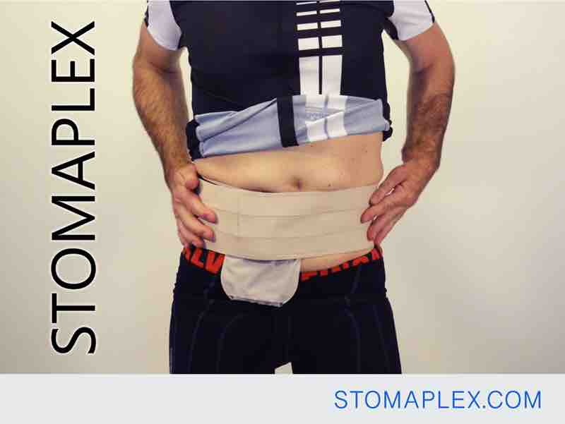 wide ostomy belt with stomaplex stoma guard on man with ileostomy, stomaplex ostomy belt is good for swimming, bag support belt